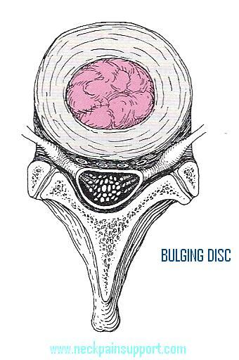 Bulging Disc