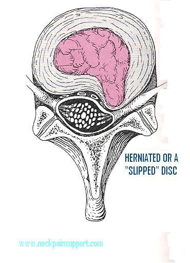 Herniated or a slipped disc