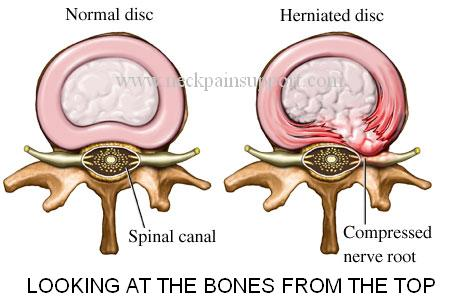 Herniated disc diagram