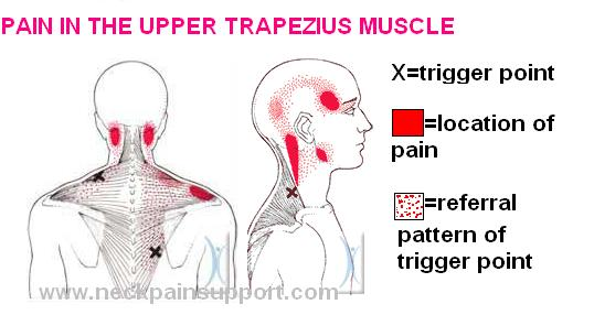 Pain In The Upper Trapezius Muscle Neck Pain Support Blog
