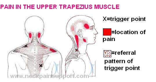 Trapezius trigger points