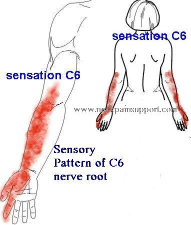 Sensory distribution c6