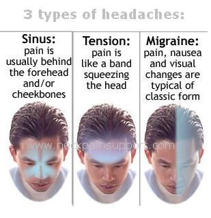 Migraine- Sinus- Tension Headaches