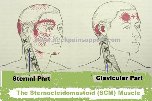The Scm Muscle In The Neck It Doesn T Typically Cause