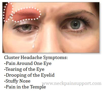 How To Relieve Eye Pressure Naturally