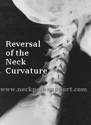 Reversal of the Neck Curvature