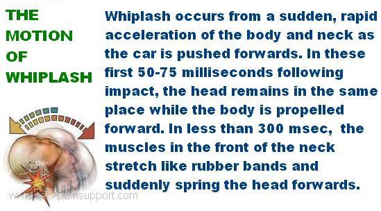 Whiplash of the Neck Spine