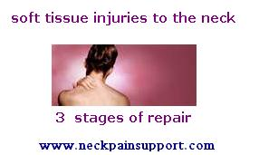 The Stages Of Soft Tissue Healing For The Neck Neck Pain