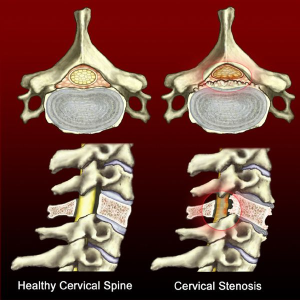 What S Worse Stenosis Or A Herniated Disc Neck Pain
