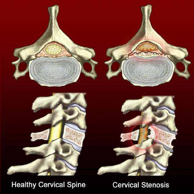 Healthy Spine-Cervical Stenosis
