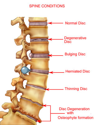 Thinning Disc - Herniated Disc - Bulging Disc