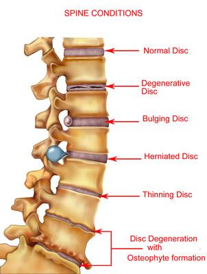 Thinning Disc - Herniated Disc - Bulging Disc