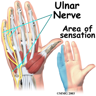 Tingling in the hands from ulnar nerve