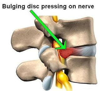 Bulging disc pressure on nerve in neck