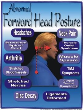 Abnormal forward head posture