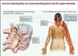 Cervical Radiculopathy can cause shooting pains into the upper extremity