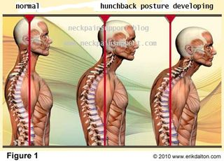 Hunchback posture developing
