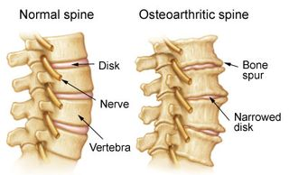Arthritis in the neck