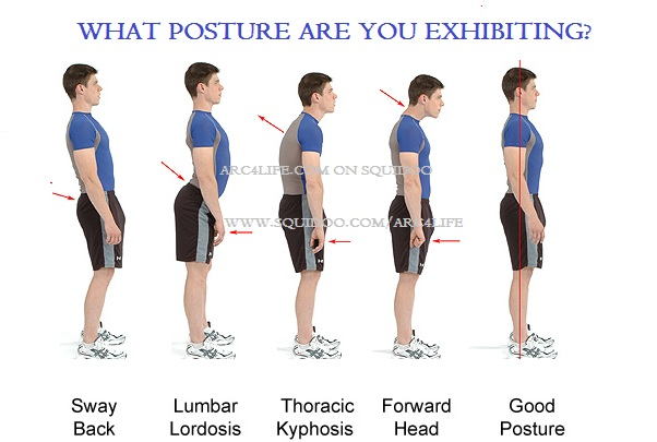 Why type of posture do you have