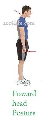 Forward head posture diagram