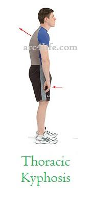 Thoracic khyposis posture
