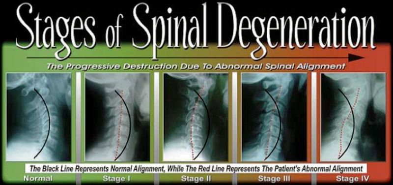 4 phases of spinal degeneration