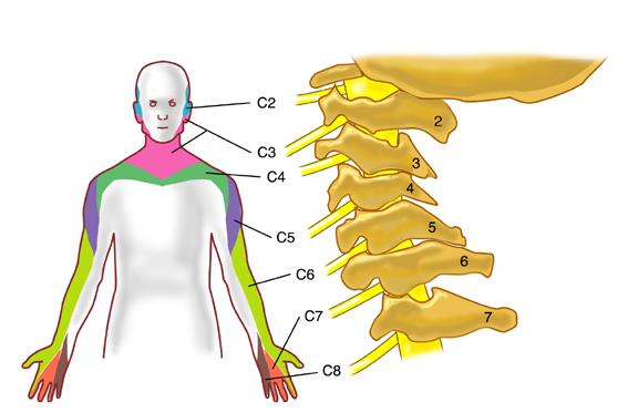 Cervical radiculopathy can cause pain and weakness in the upper extremity