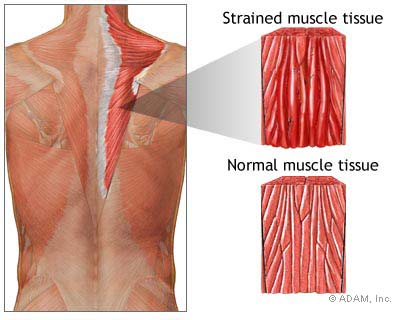 Muscle tissue that has a strain