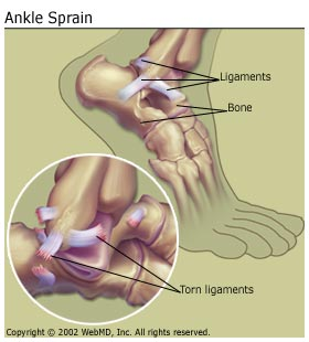 Here an example of a sprain to the ankle