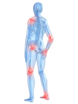 Arthritis Can Occur Anywhere In The Body