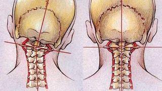 Upper cervical vertebrae can get misaligned