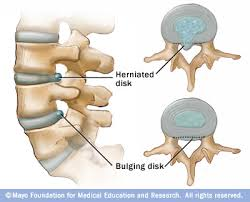 Bulged disc
