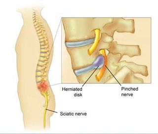 Pinched nerve in the back