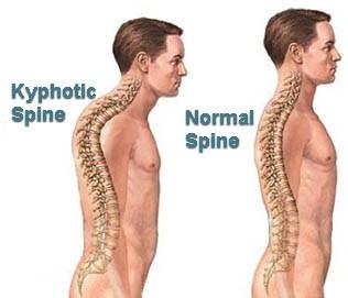 Hunchback posture development