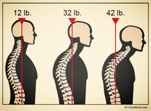 Forward head posture effects on body