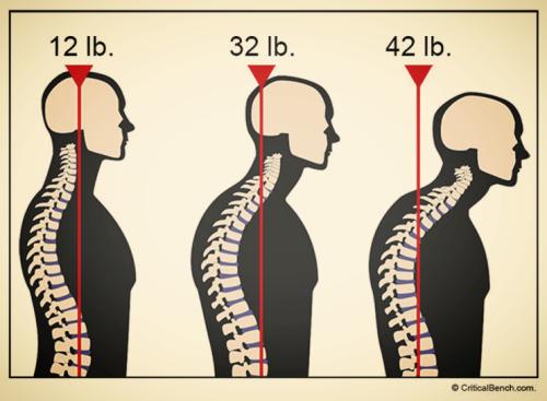 Forward head posture effects on body