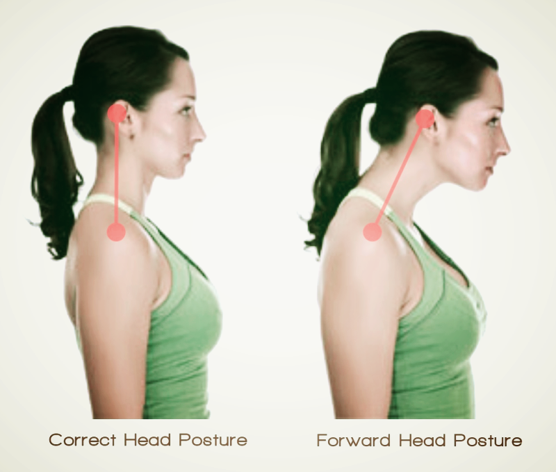 Forward head posture and normal head posture