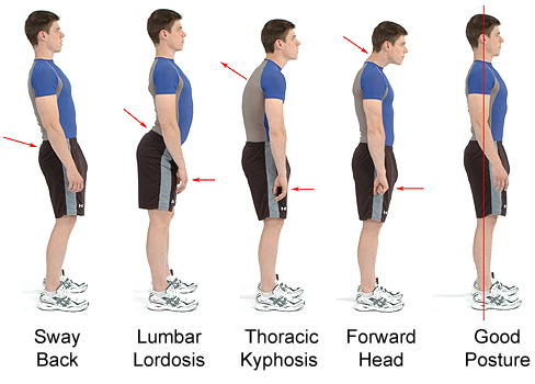 Posture is the windo to our spine