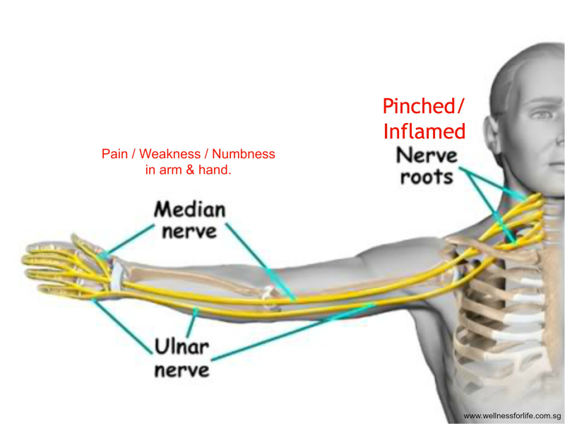 Nerve pain in the neck