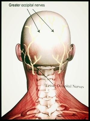 Occipitial neuralgia